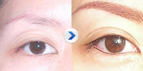 智能提眉术的前后照片图片